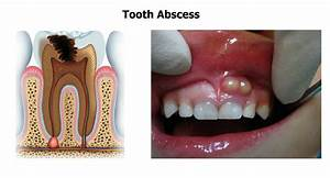 What is phoenix dental abscess? | News | Dentagama