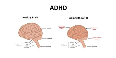 Diagram Of Adhd by Adhd And School 5 Tips For Beating The School System