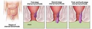 Hemorrhoids - symptoms and treatment of hemorrhoids ...
