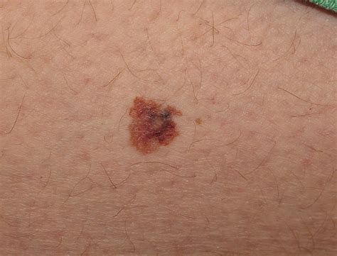 Melanoma Images Melanoma Causes Symptoms And Treatment Health Care
