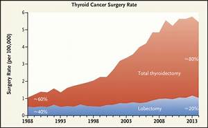 Thyroid Cancer 101  Why You Need An Expert Second Opinion