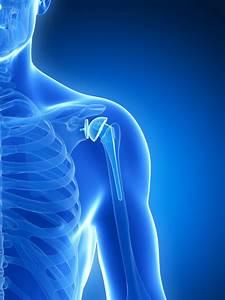 Shoulder Arthritis Treatment Portland  Oregon