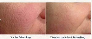 Große Poren Wangen : laserzentrum dr med walter bayard spezialarzt f r haut und venenleiden angiologie ~ Yasmunasinghe.com Haus und Dekorationen