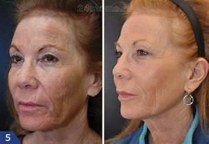 Маски для лица от морщин вокруг носа и рта