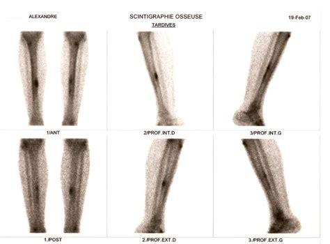 douleur interieur genou course a pied 100 images runner s world tendinite du fascia lata ou