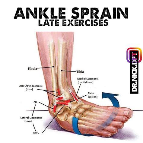 late phase ankle sprain ankle sprains