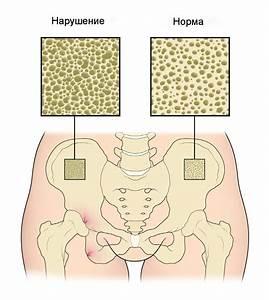 Самые эффективные методы и препараты для лечения гипертонии