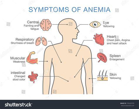 Symptoms Common Many Types Anemia Illustration Stock