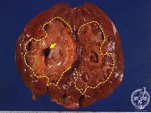 12 Kidney And Urinary System  14  Nephrolithiasis