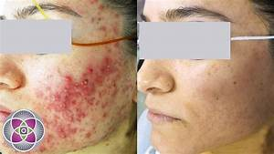 Laser Treatment To Get Rid Of Acne  U0026 Acne Scars