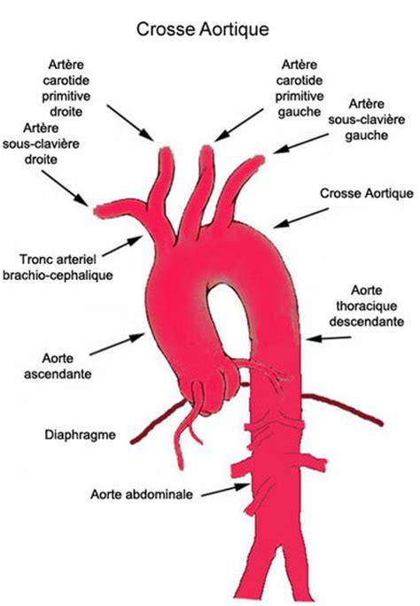Aorte thoracique; aorte descendante; aorte thoracique ...