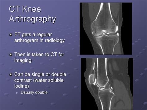 arthrography powerpoint