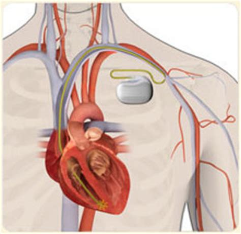 pacemaker chambre pacemaker gets electricity from the needs no batteries