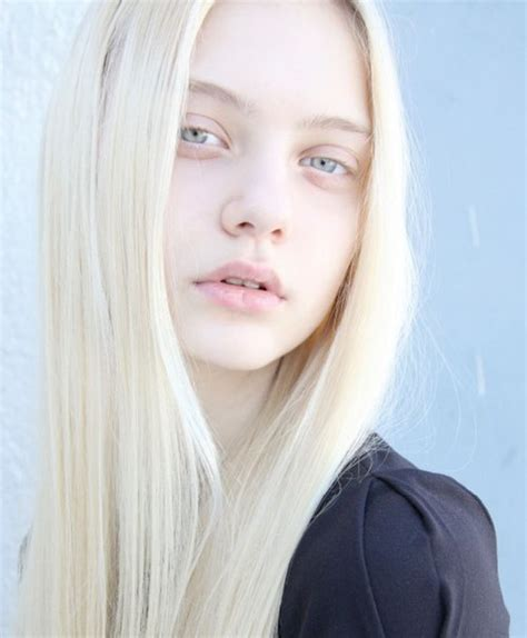 Hair Almost White by Albinos On