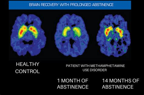 brain  recovery recovery research institute