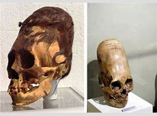 Are Paracas Elongated Skulls a New Species, Aliens or a Hoax?