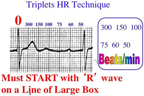 Triplets, R to R, & 6-Second Heart Rate Method