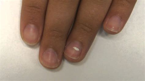 White Spots On Nail Beds by Leukonychia Nail Bed White Lines