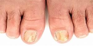 Как избавится от грибка на ногтях на ногах в домашних условиях