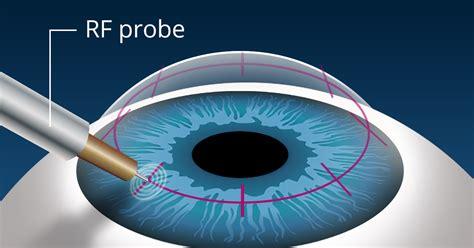 conductive keratoplasty ck reduces   reading glasses