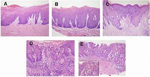 Representative Histological Pictures Of Opls And Osccs   A