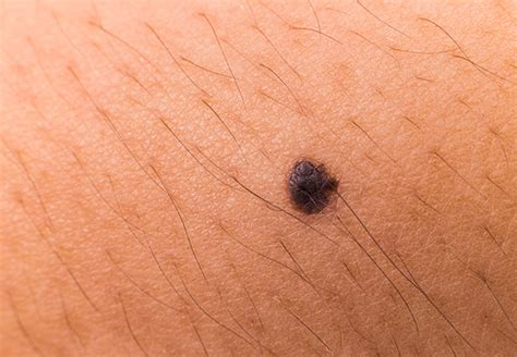 Melanoma Images Best Way To Beat Melanoma Is To The Symptoms Health