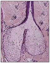 Лечение аденомы солевой повязкой