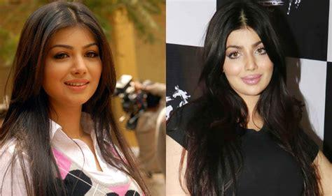 ayesha takia latest victim  plastic surgery  wrong