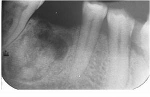 Periapical view of ossifying fibroma.