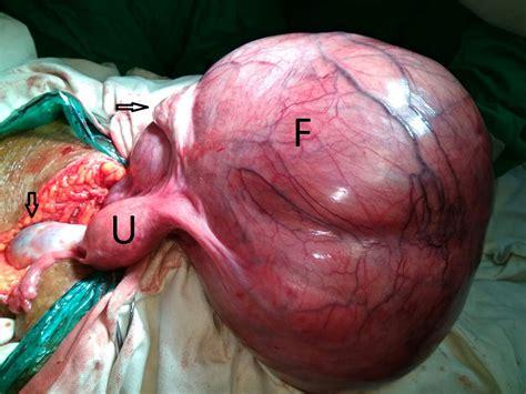 journal of postgraduate gynecology obstetrics large