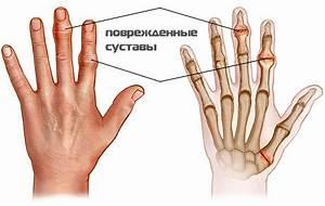 Могут ли болеть суставы рук при беременности
