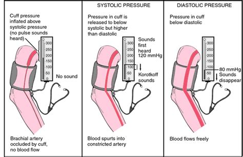 Blood gas analysis | definition of blood gas analysis by
