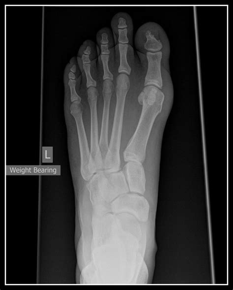lisfranc recovery metatarsal tribe xray between child suzanne