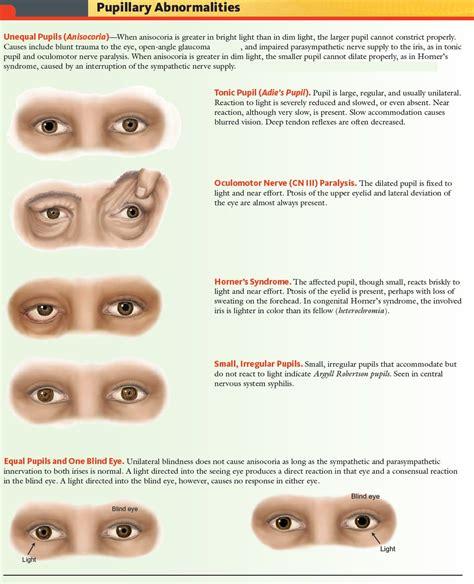 Manual Of Medicine On Twitter Pupillary Abnormalities