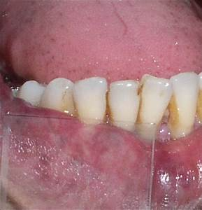 Showing Blanching Of The Intraoral Hemangioma During