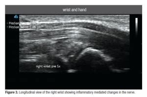 Diagnostic Ultrasound in Carpal Tunnel Syndrome: A Helpful ...