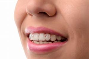 An Insider's Guide to Invisalign - Overland Park Dentistry