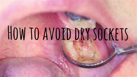 How To Avoid Dry Sockets  Youtube. Modern House Living Room Design. Diy Living Room Side Tables. Chairs For A Small Living Room. How To Decorate Living Room With Yellow Walls. Living Room Decor And Colors. Living Room Modern Ideas Design. Old Hollywood Glamour Living Room Decor. Houzz Living Room Wall Lights