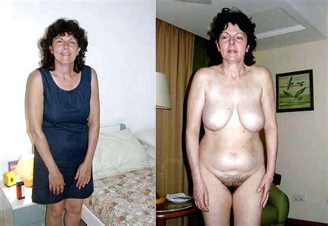 Dressed Undressed Granny Mature 27 Pics Xhamster