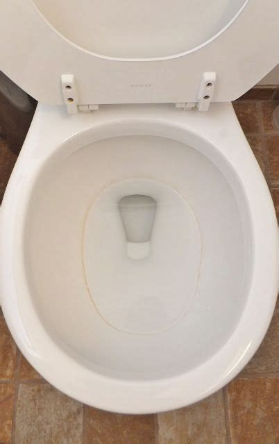 How To Get Rid Of Toilet Rings! Great Cleaning Tip