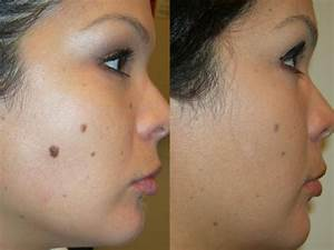 Six Mole Removal Options For The Average Person ...