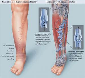 Leg Discoloration Stasis Dermatitis