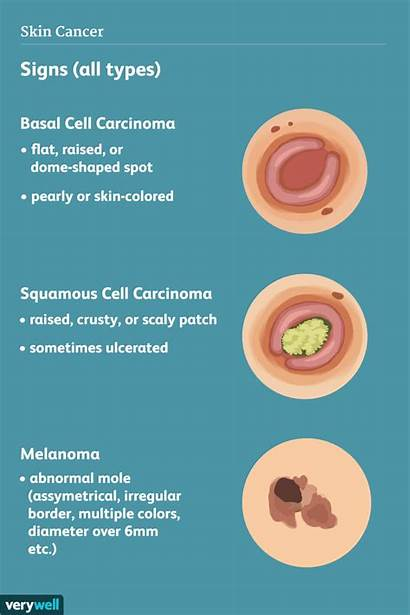 Cancer Skin Symptoms Signs Mole Types Common