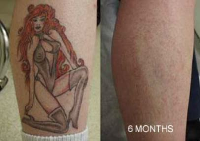tattoo removal  home work