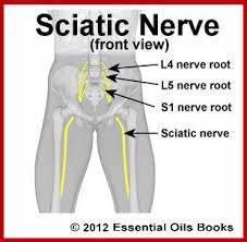 Sciatica Treatment - spine-health