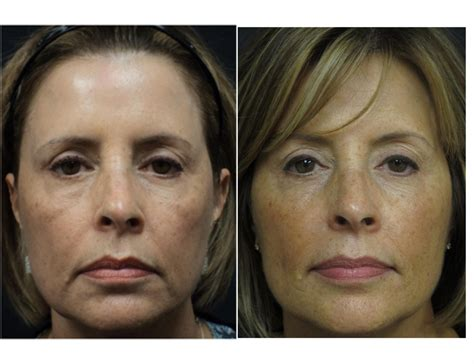 Before and After Photos - Central Florida Dermatology ...