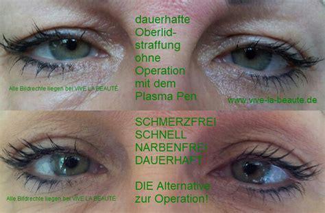 lidstraffung ohne operation permanent makeup berlin
