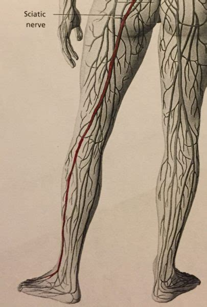 sciatica guelph community acupuncture guelph community