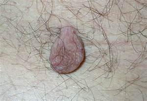 Папиллома в ухе у человека лечение