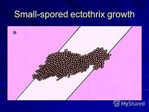Ectothrix : définition de ECTOTHRIX , , adj.